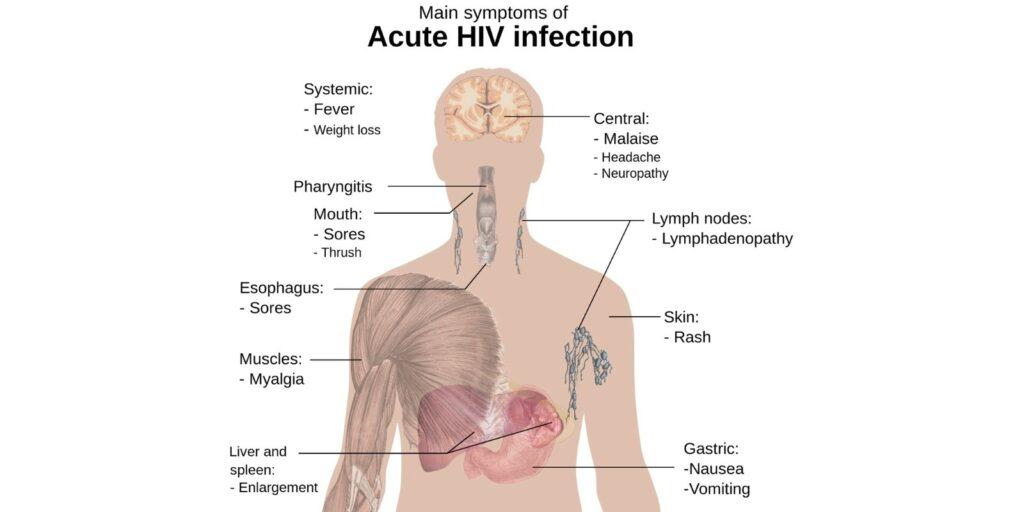 Accute HIV Infection Symptoms